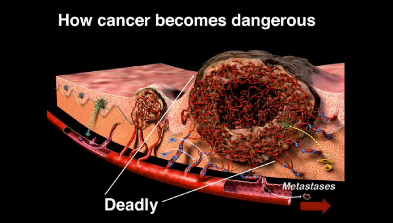 nowotwór angiogeneza